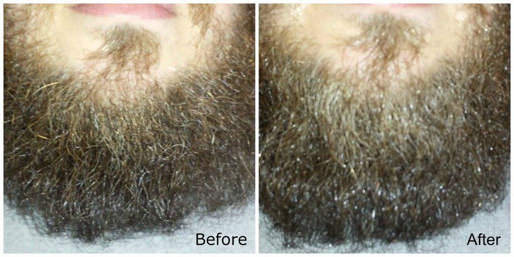 Beard Butter Before and After